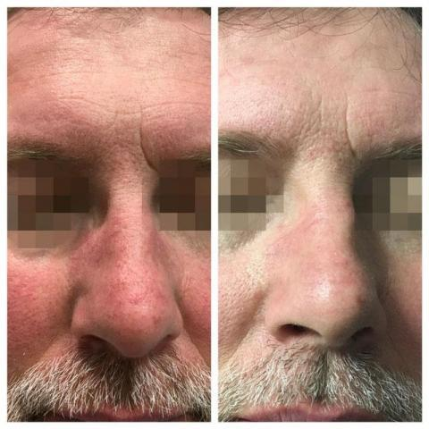 B&A results before after