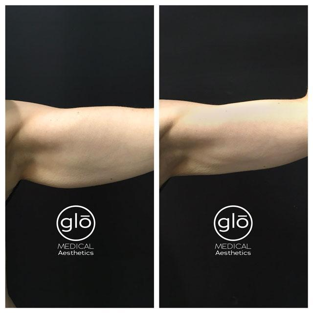 Cool sculpting arm results before after