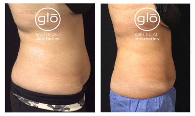 Cool sculpting results before after