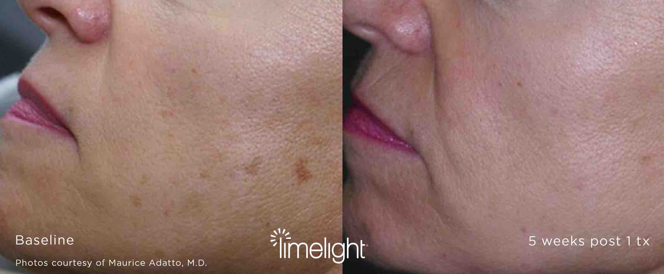 XEO results before after
