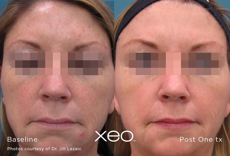XEO limelight results before after