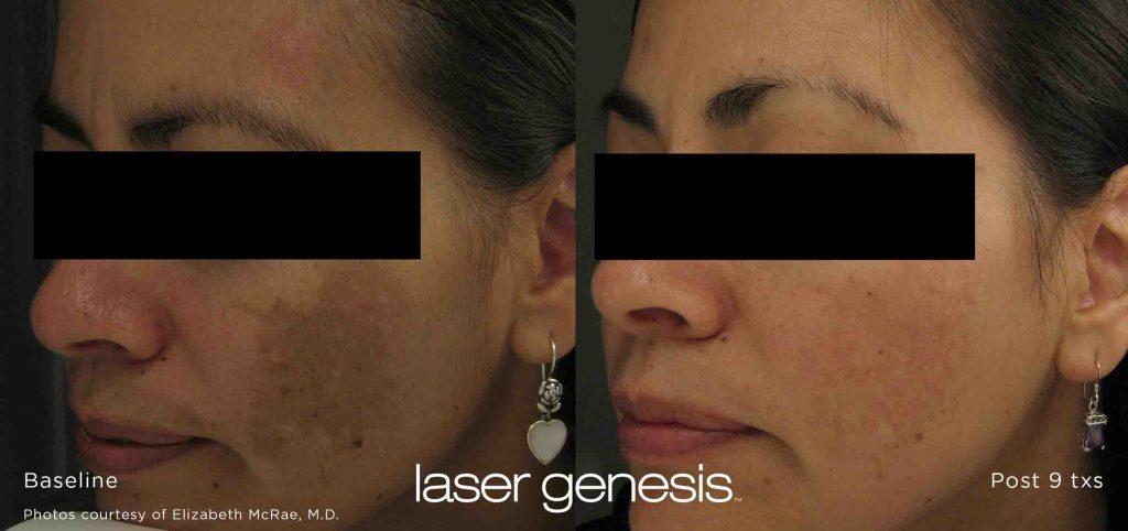 XEO laser genesis results before after
