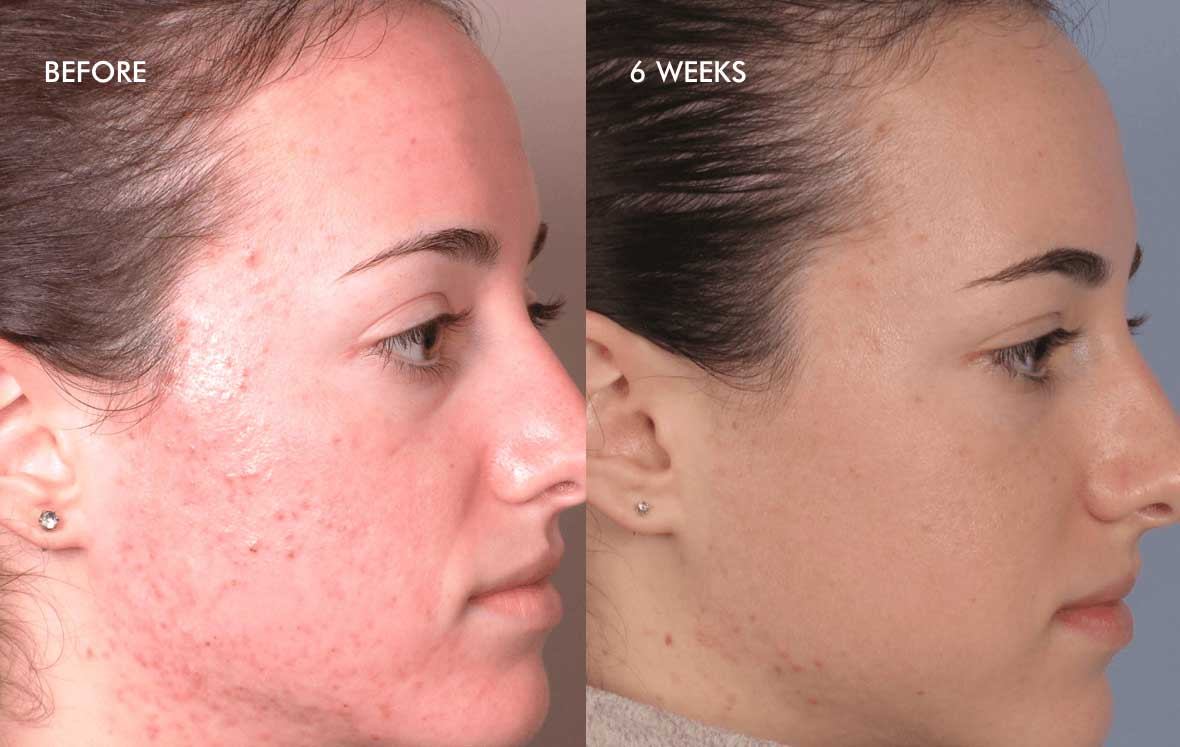 Acne results before after