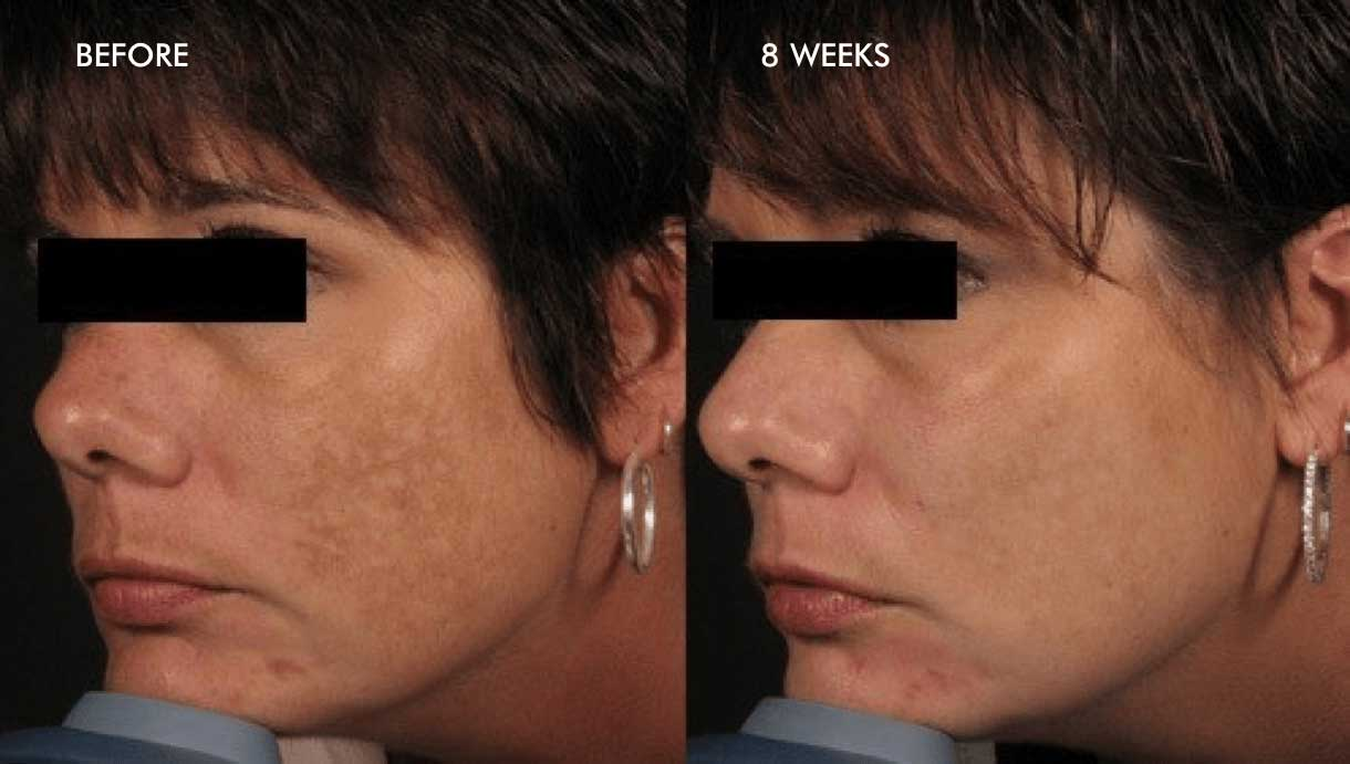 Melasma results before after