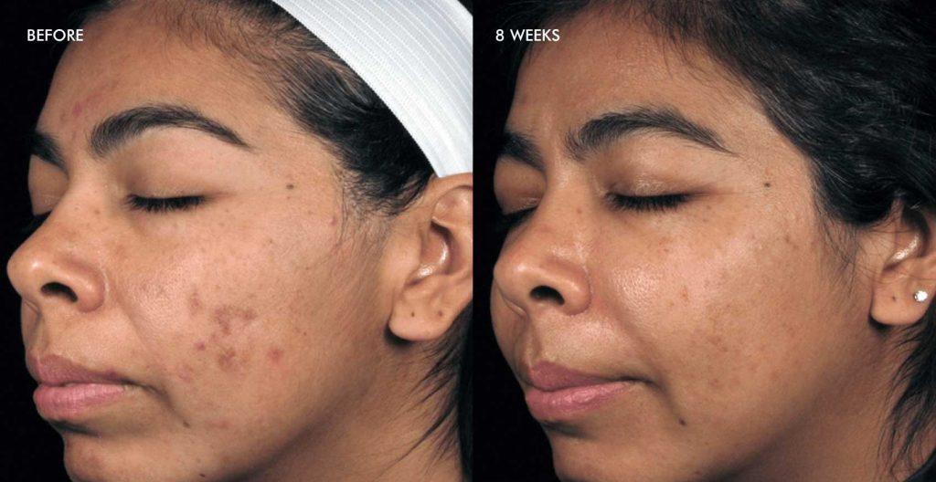 Pih results before after