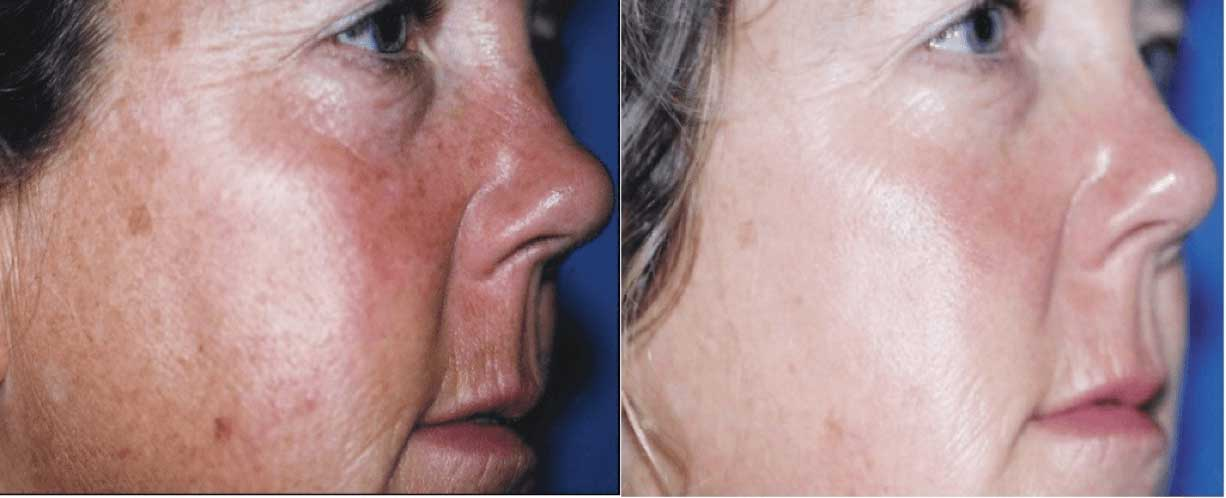 Vitamin C Hydrating results before after