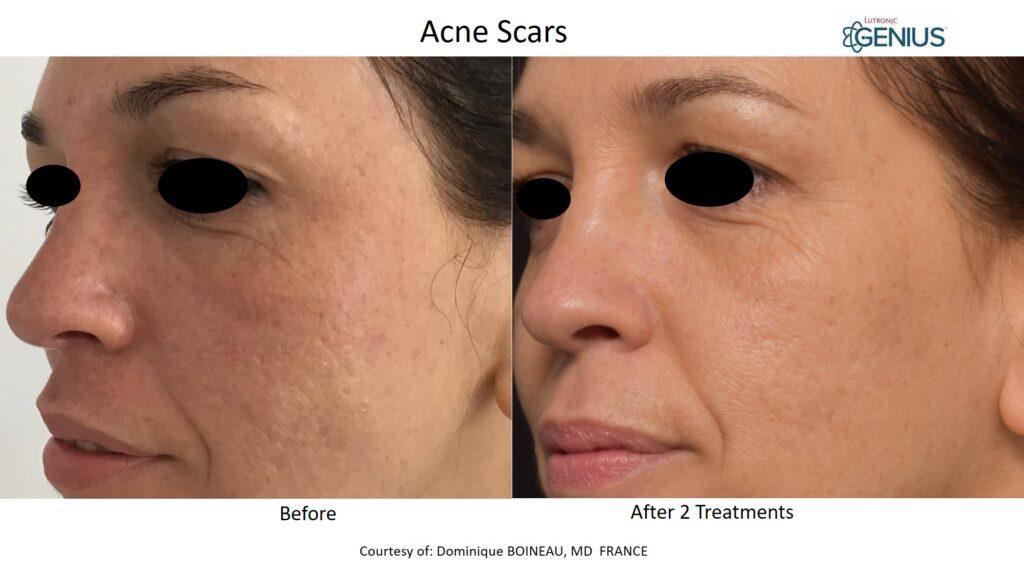 Genius_Boineau-Acne-Scars