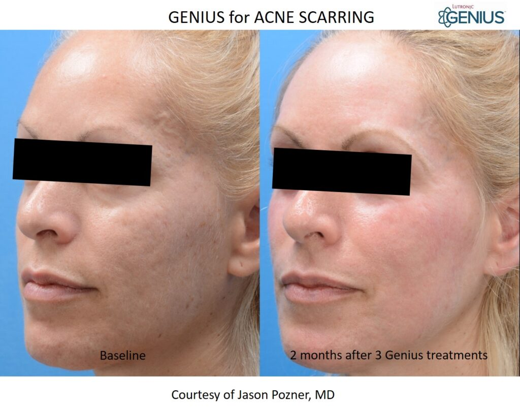 Genius_Pozner-Acne-Scars